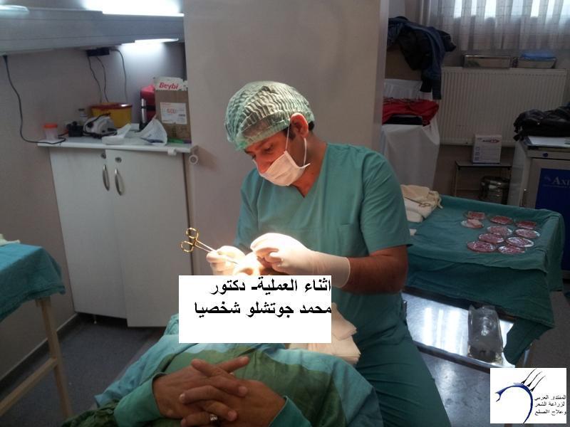 زراعتي الدكتور محمد جوتشلو- وكما www.hairarab.comd48d