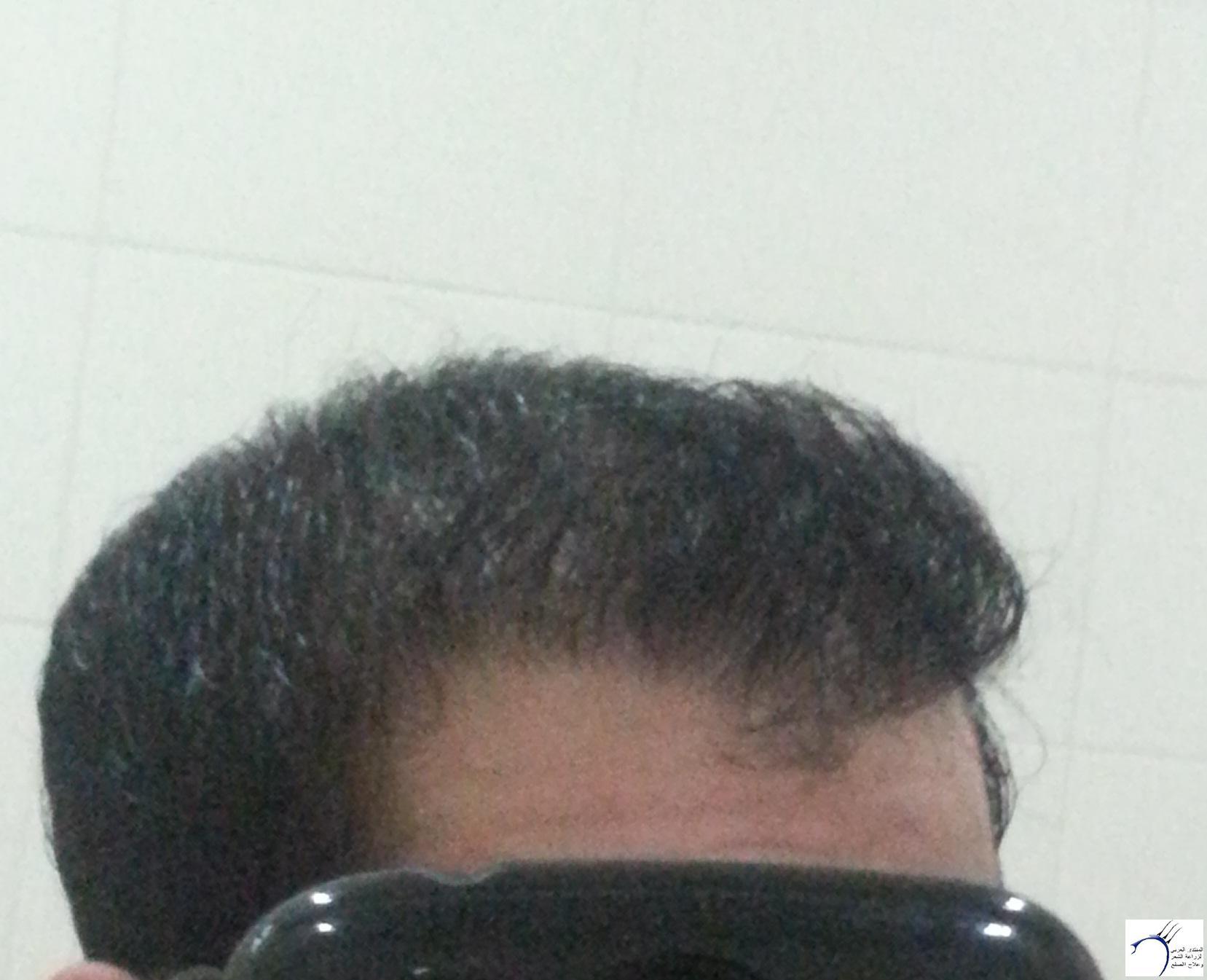 www.hairarab.comd593