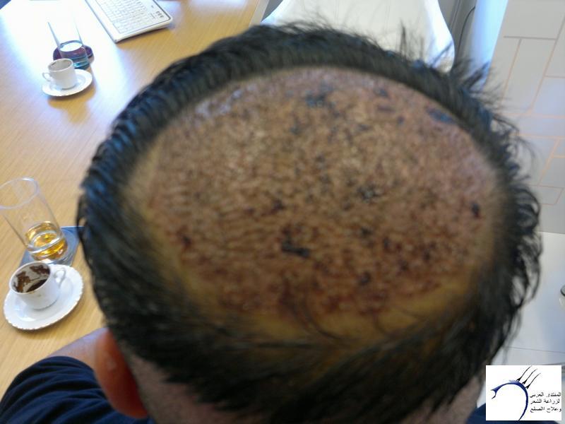 تجربتي لزراعة الشعر تركيا الدكتور www.hairarab.comd5b4