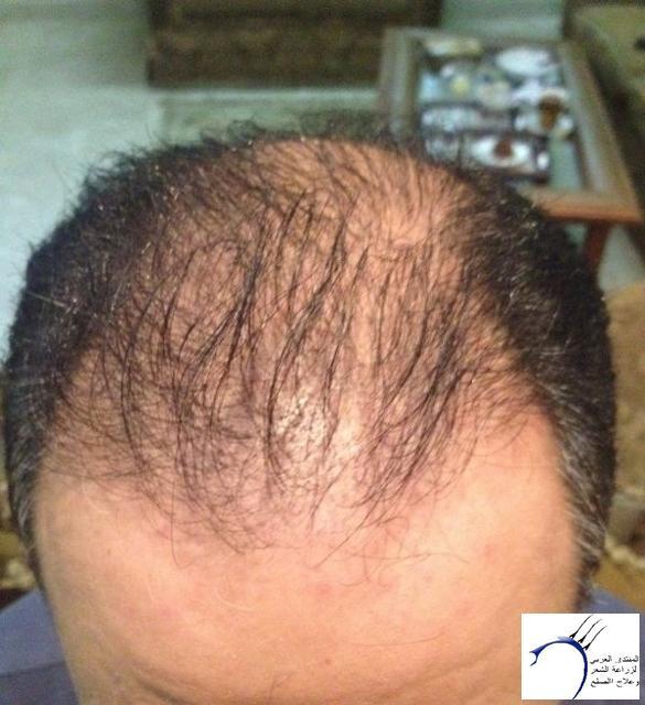 تجريتي والدكتور سركان (للعضو محمد) www.hairarab.comd62c
