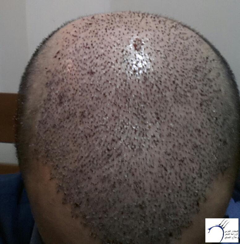 تجربتي مستشفى اتوجنميد التحديث واضافة www.hairarab.comd64a