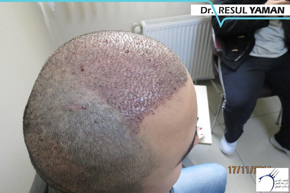 4800 واحد-الدكتور www.hairarab.comd7e0