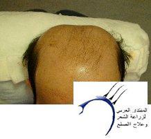 العمليه الثانيه ماجيك هير((تحديث سنة)) www.hairarab.comd8aa