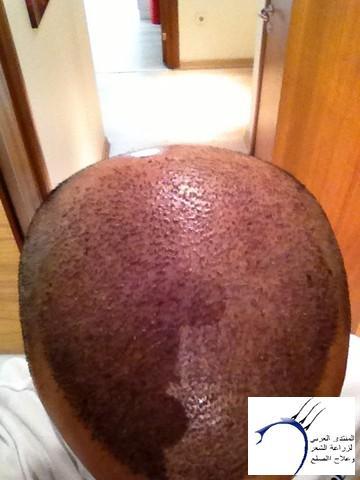 أقدم تجربـتي لزراعة الشعر مركـز www.hairarab.comd8e2