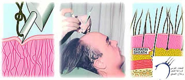أضرار زراعة الشعر الصناعي www.hairarab.comd9da