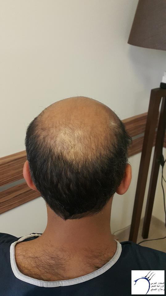 www.hairarab.comd9fa