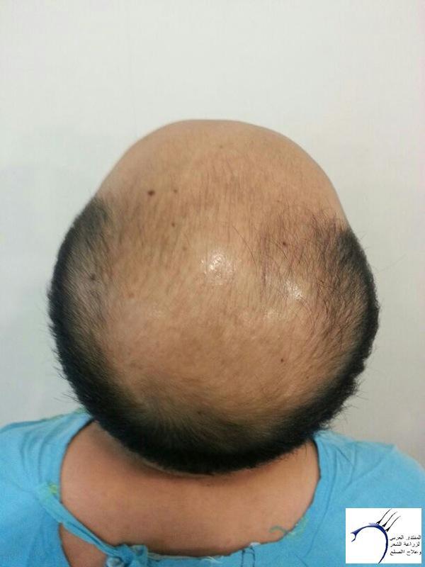 www.hairarab.comdbff
