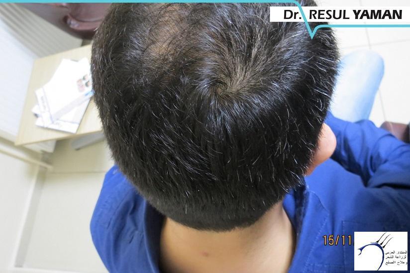 4800 واحد-الدكتور www.hairarab.comdc5d