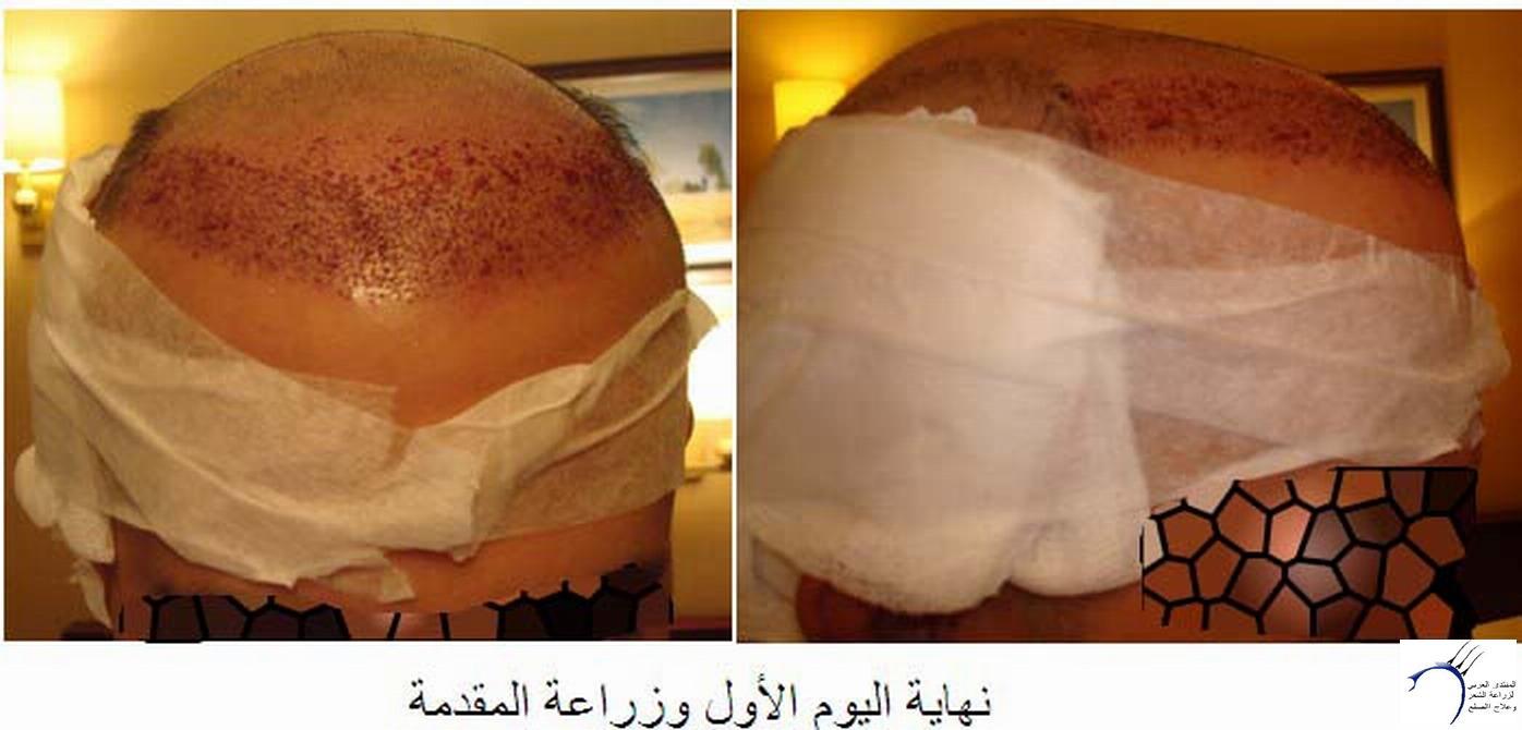 موضوعي زراعة الشعر 18-11-2011 _ستار www.hairarab.comdc5d