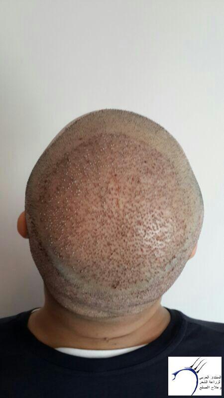 www.hairarab.comdc7e