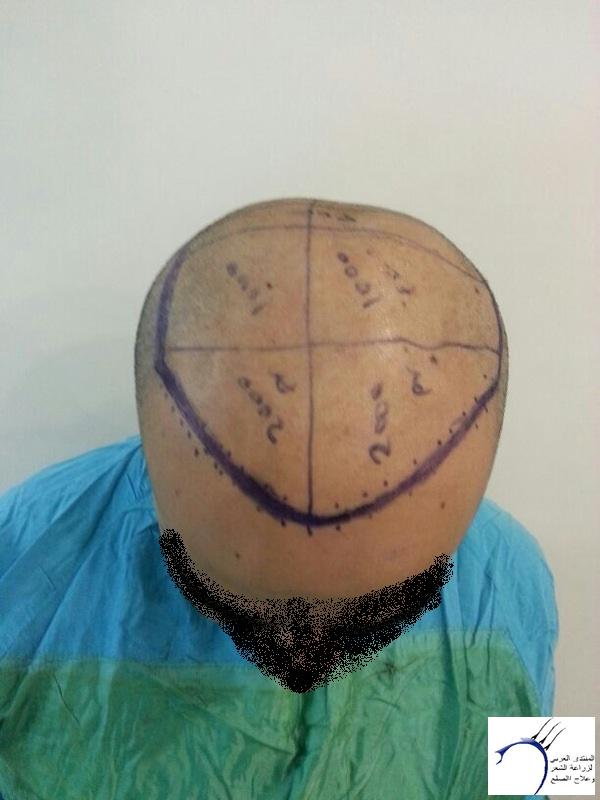 www.hairarab.comdd86