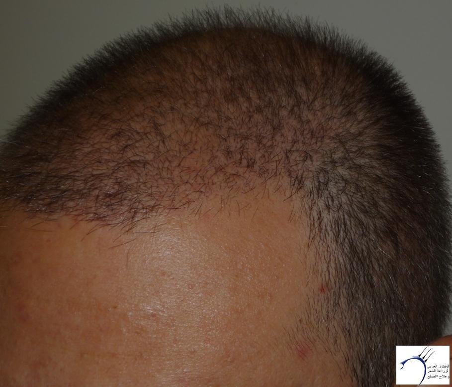 تجربتي CEVRE Hospital (2012-7-15 www.hairarab.comddff