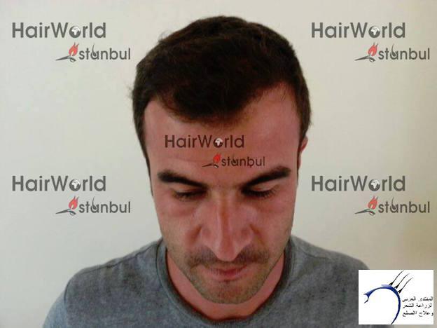 التجارب لزراعة الراس تركيا(مركز هاير www.hairarab.comdf24