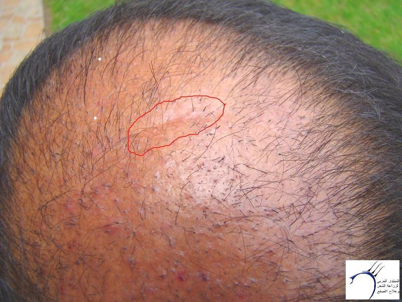 تجربتي لزراعة الشعر تركيا الدكتور www.hairarab.comdfc0
