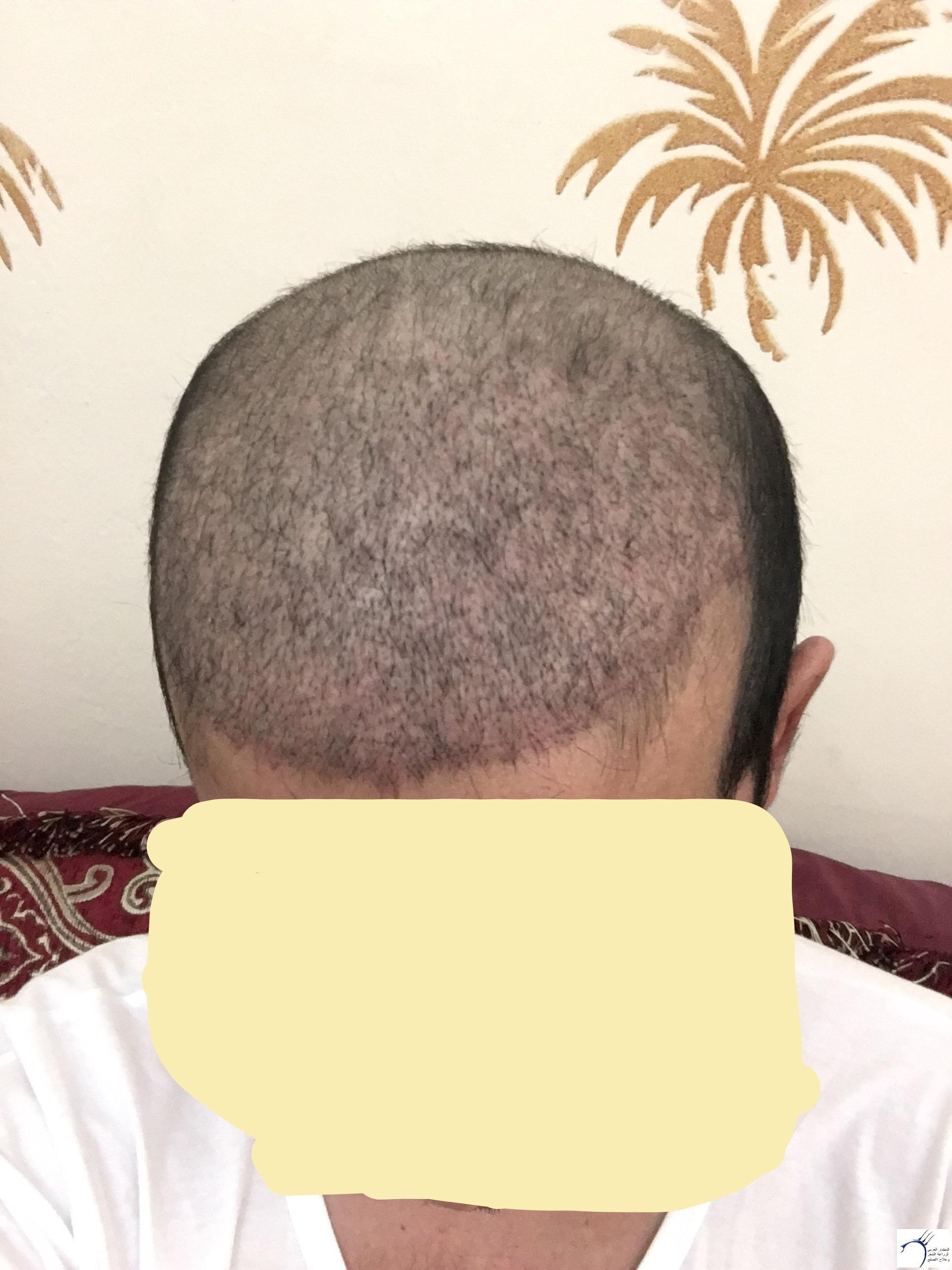 www.hairarab.comdfd7