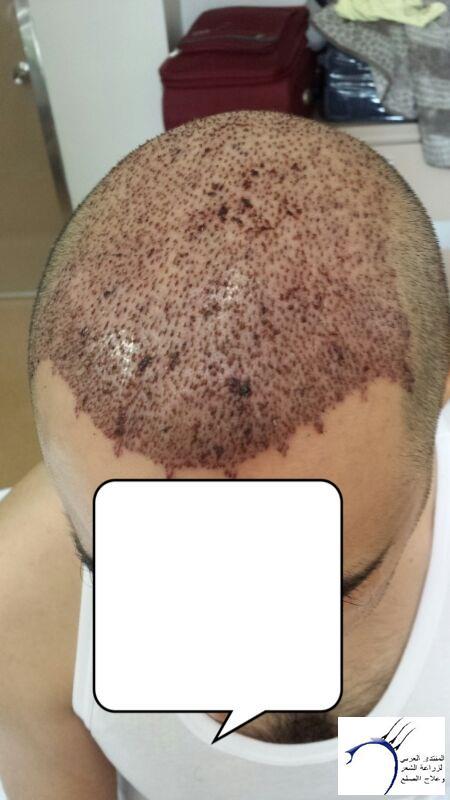 (التحديث الأول شهرين تفاصيل زراعتي www.hairarab.come061