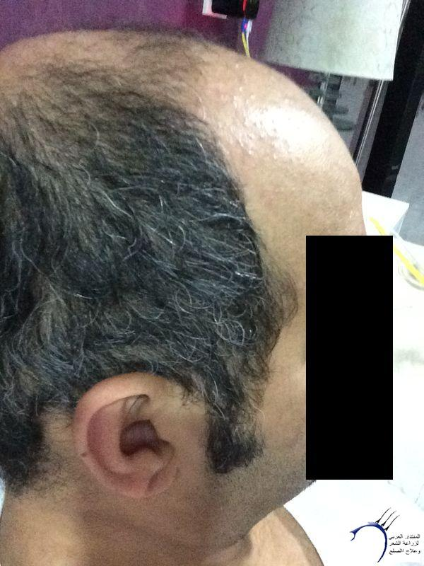www.hairarab.come0bb