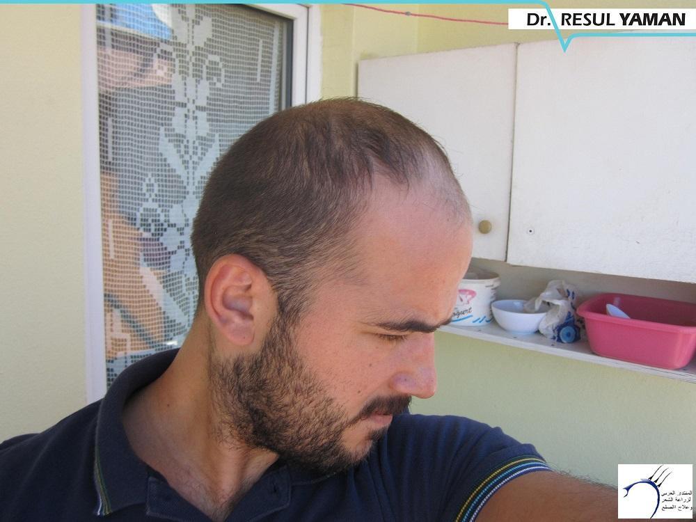4680 الدكتور www.hairarab.come134