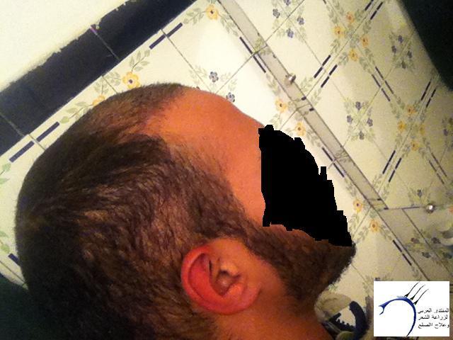 زراعتي مركز ستارهير بتاريخ 04/12/12 www.hairarab.come183