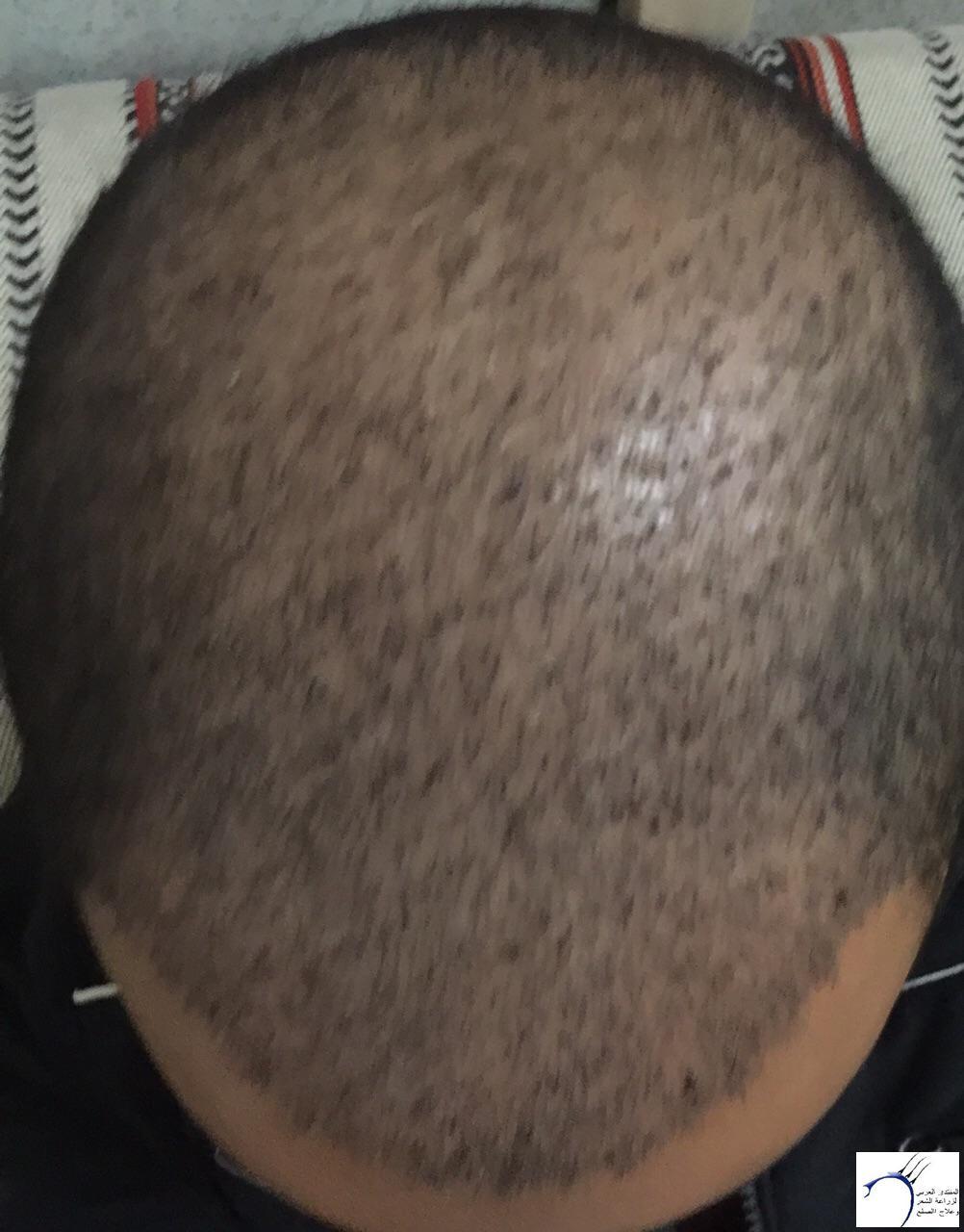 www.hairarab.come3d9