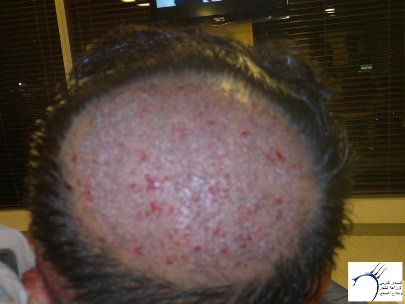 تجربتي لزراعة الشعر تركيا الدكتور www.hairarab.come434