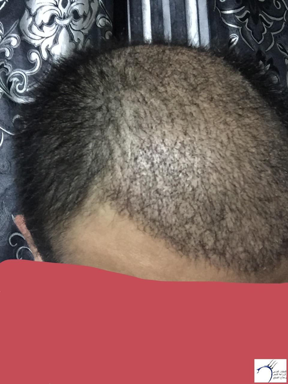 تجربتي رويال تحديث الشهر الرابع www.hairarab.come6ec