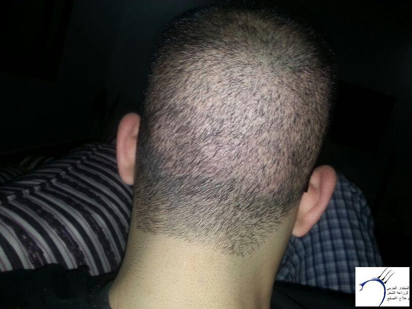 بحمد الله تجربتي الثانيه المختص www.hairarab.come7e3