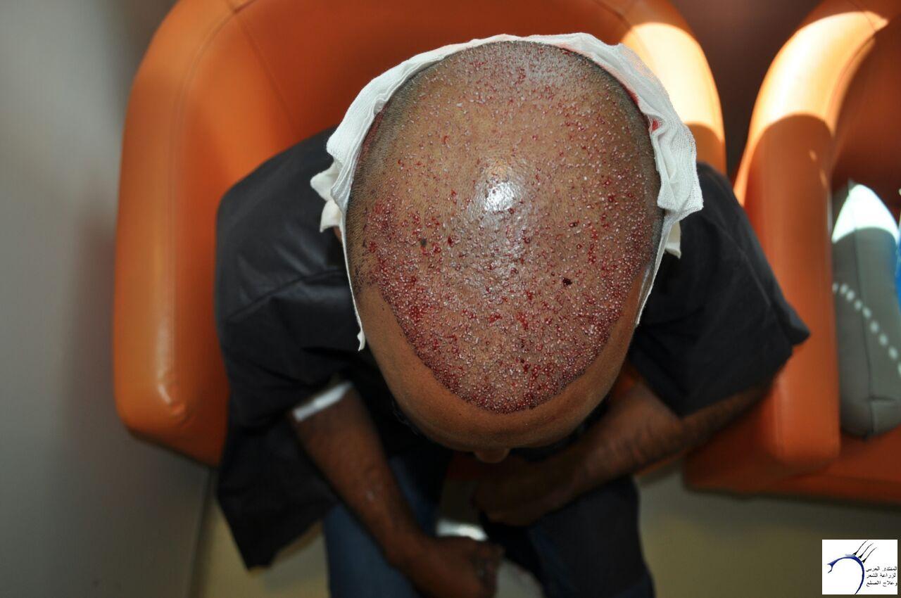 تجربتي مستشفى ايست اثيكا تركيا www.hairarab.come800