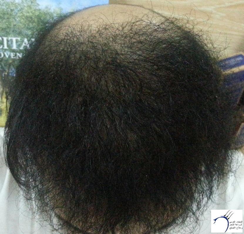 (تحديث تسعة أشهر الزراعة) ...ستار www.hairarab.come804