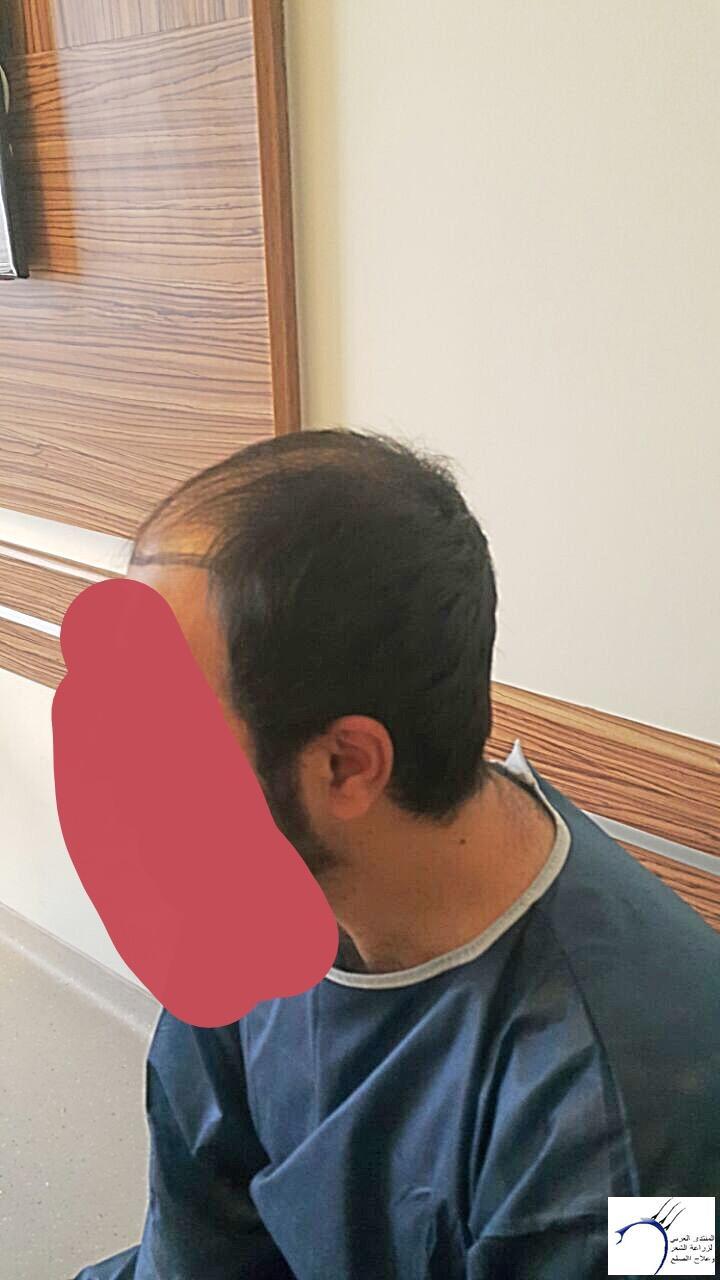 تجربتي رويال تحديث الشهر الرابع www.hairarab.come82e