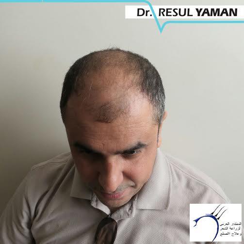 (:سيلفيي) الدكتور www.hairarab.comeab1