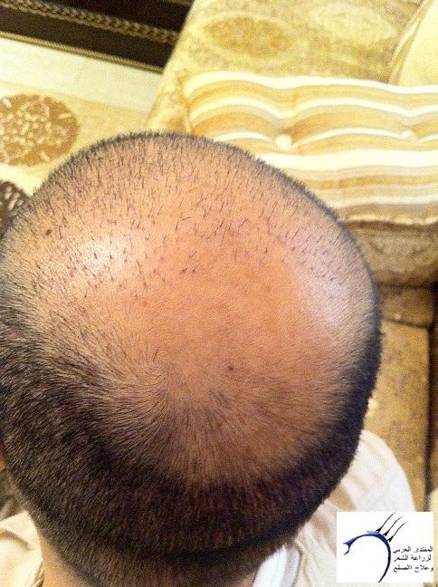 www.hairarab.comeb04