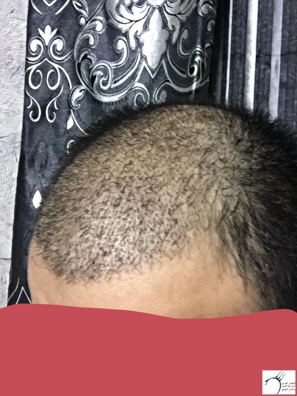 تجربتي رويال تحديث الشهر الرابع www.hairarab.comebf5