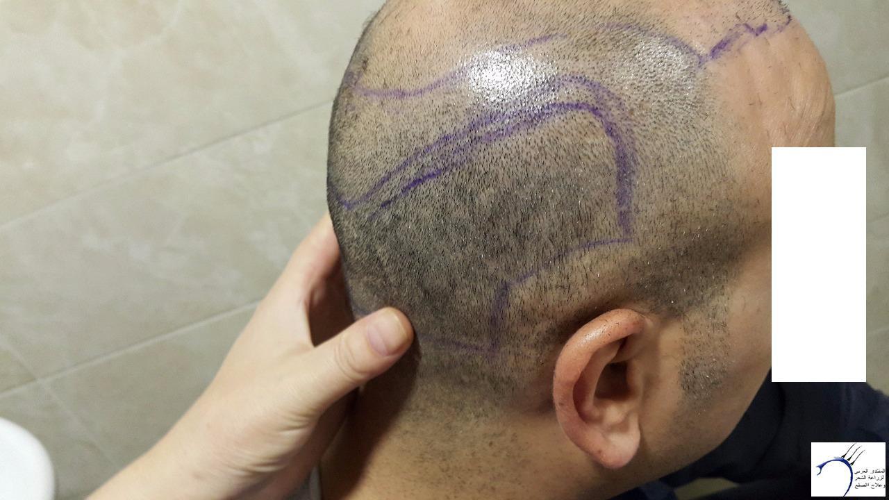 www.hairarab.comebfa