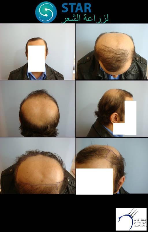 هير((تحديث www.hairarab.comec17