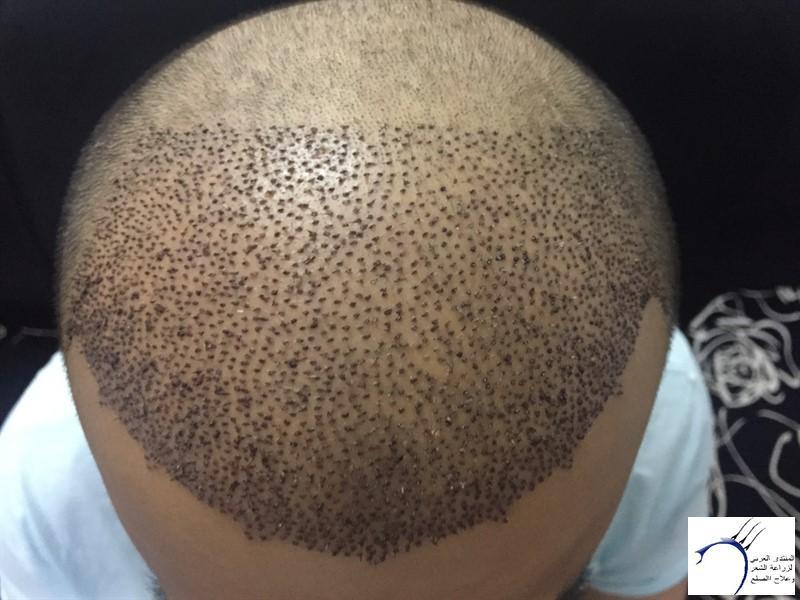 06-05-2015 www.hairarab.comecde