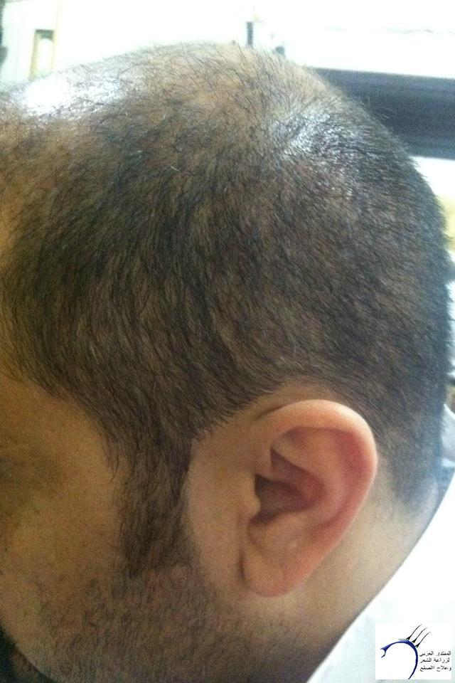 (التحديث الأول شهرين تفاصيل زراعتي www.hairarab.comedb3