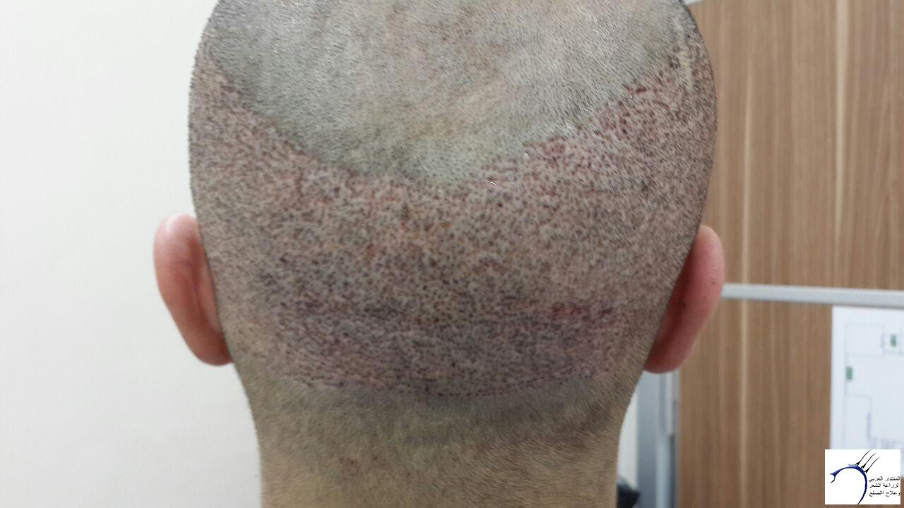 www.hairarab.comedcc