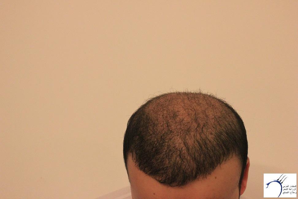 www.hairarab.comef0e