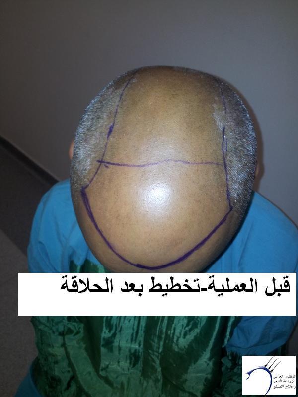 زراعتي الدكتور محمد جوتشلو- وكما www.hairarab.comef4f