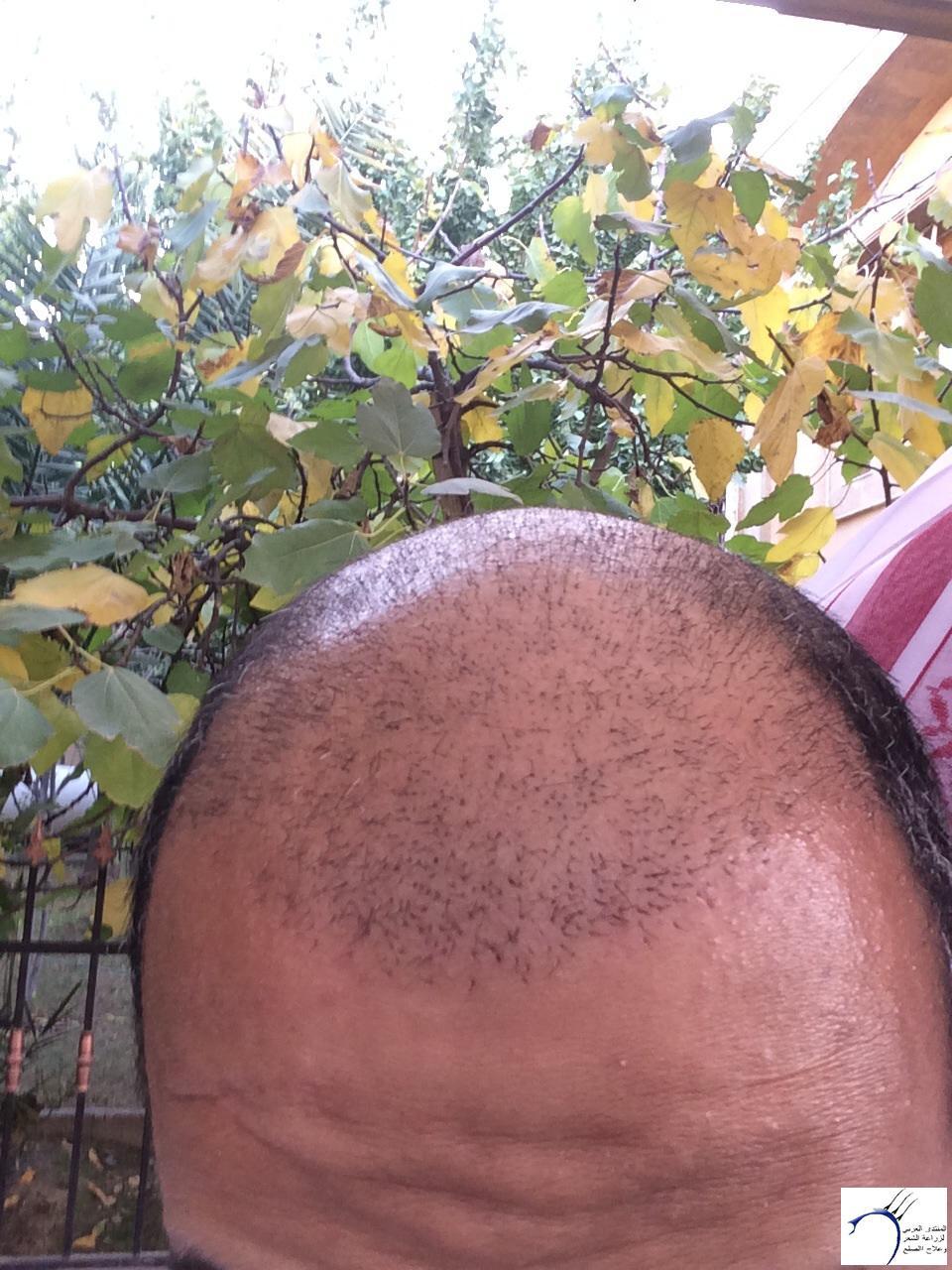 www.hairarab.comefba