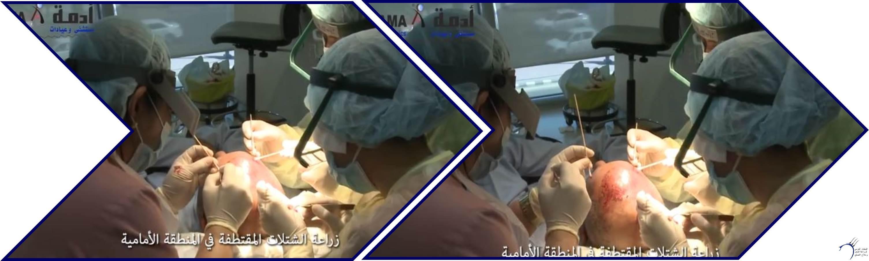 مشاكل الصلع وزراعة الشعر للدكتور www.hairarab.comf0bd
