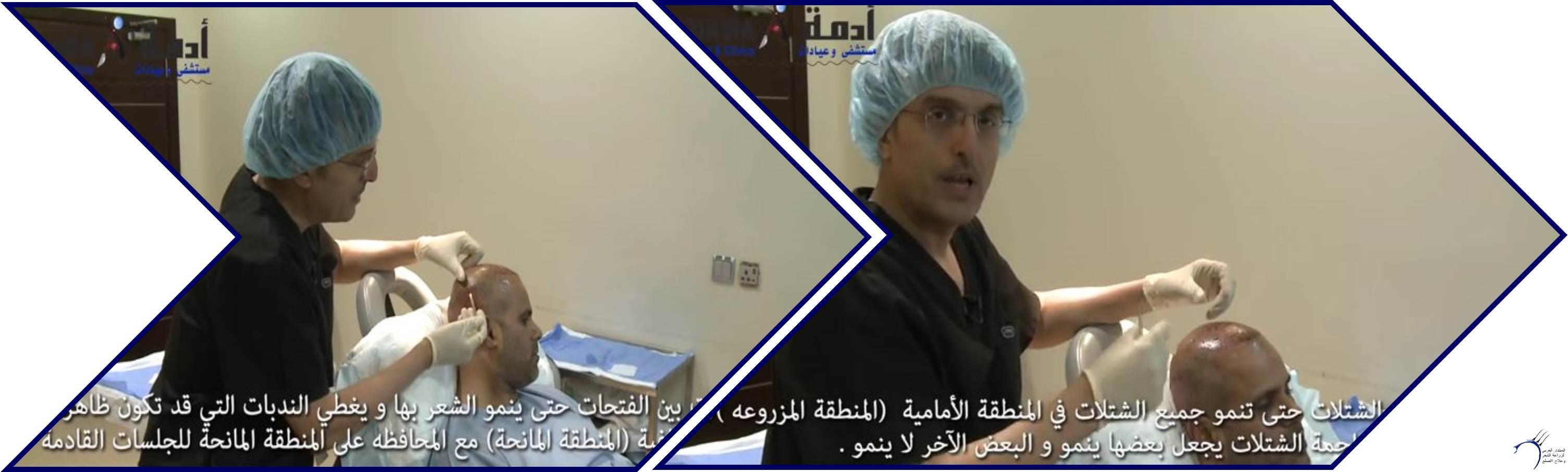 مشاكل الصلع وزراعة الشعر للدكتور www.hairarab.comf160