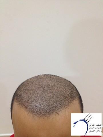 أقدم تجربـتي لزراعة الشعر مركـز www.hairarab.comf2f4