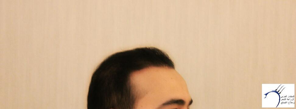 www.hairarab.comf41e