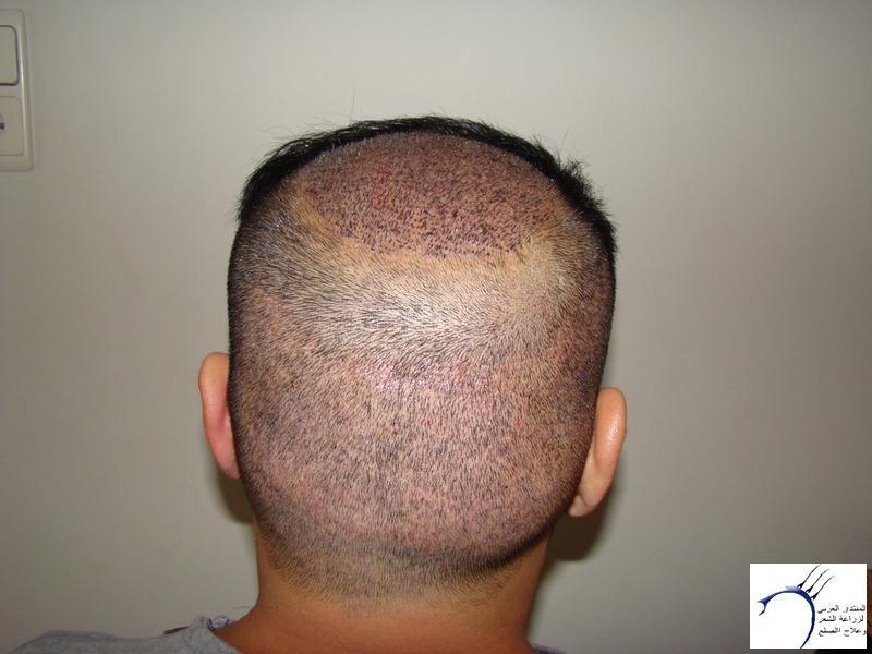 تجربتي لزراعة الشعر تركيا الدكتور www.hairarab.comf47d