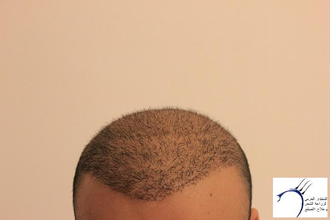 www.hairarab.comf4d3