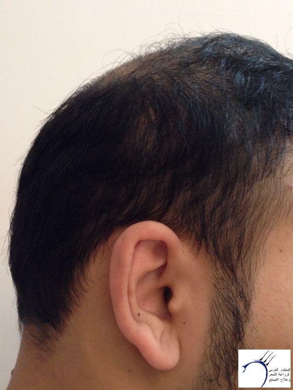 www.hairarab.comf505