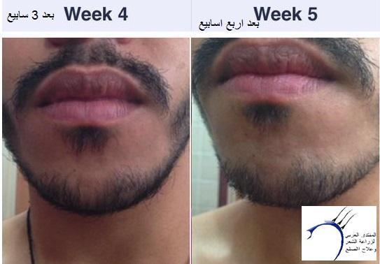 تجربتي بالصور بخاخ ريجين للذقن www.hairarab.comf565