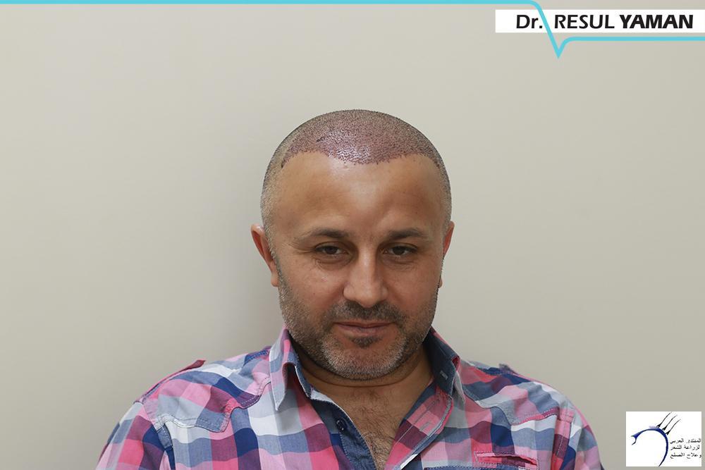 نتيجة السيد Emin Demir زراعة www.hairarab.comf67a